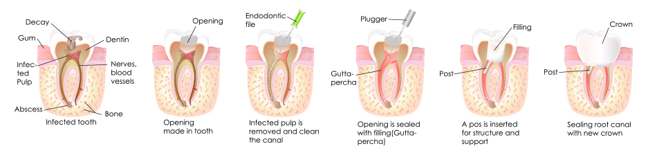Root-Canal-Image