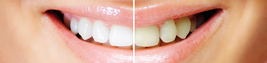 Teeth Whitening Boca Raton